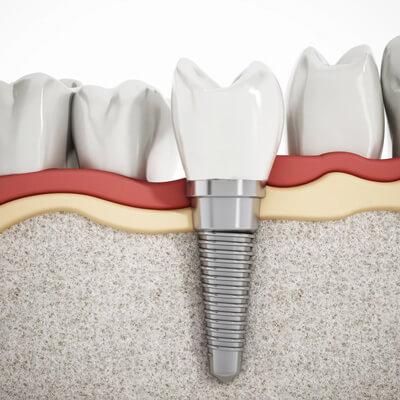 Implant zęba - zdjęcie